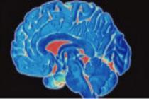Siyaset ve beyin yapısı arasındaki ilişki